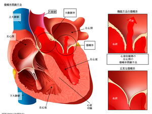 Y_mitral_insufficiency